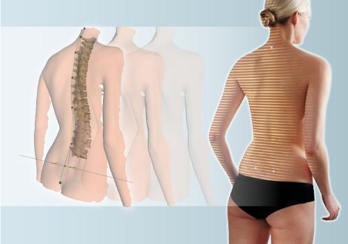Dynamische Rückenvermessung